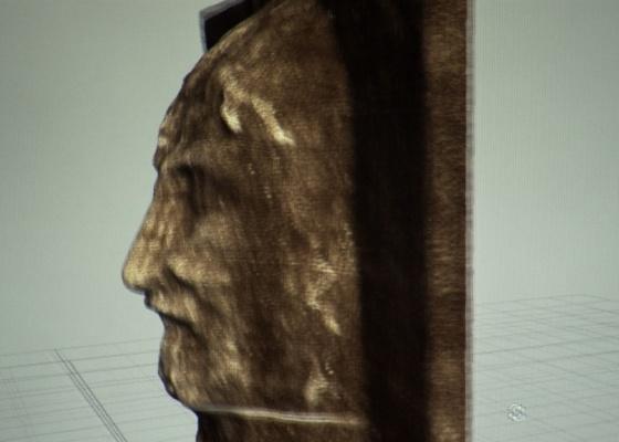 Especialistas usaram técnicas modernas de criação de imagens de 3D para recompor a imagem da face retratada no Santo Sudário, que muitos acreditam ser o rosto de Jesus Cristo