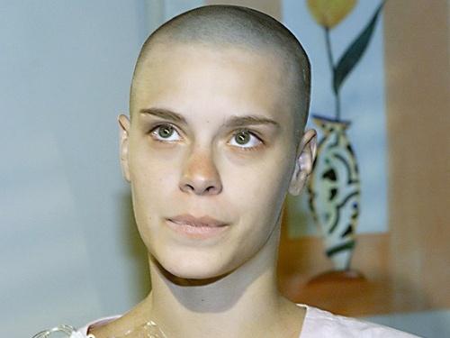 """Carolina Dieckmann raspou o cabelo para caracterizar a personagem Camila, de """"Laços de Família"""", da Globo (5/12/2000)"""